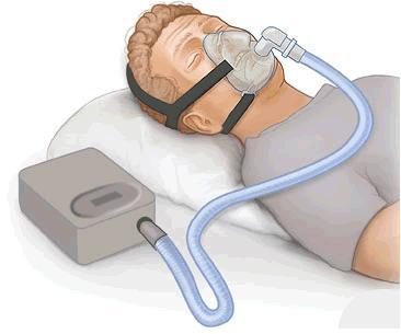 הפסקות נשימה בשינה: לא רוצה סיפאפ CPAP?